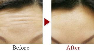 術前術後の比較:眉間