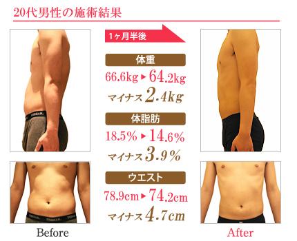 術前術後の比較