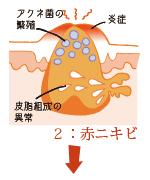 アクネ菌が繁殖